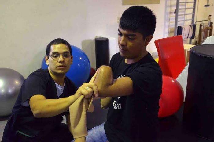20150526-implantan-prtesis-a-un-joven-que-perdi-ambos-antebrazos-en-un-accidente-de-trabajo